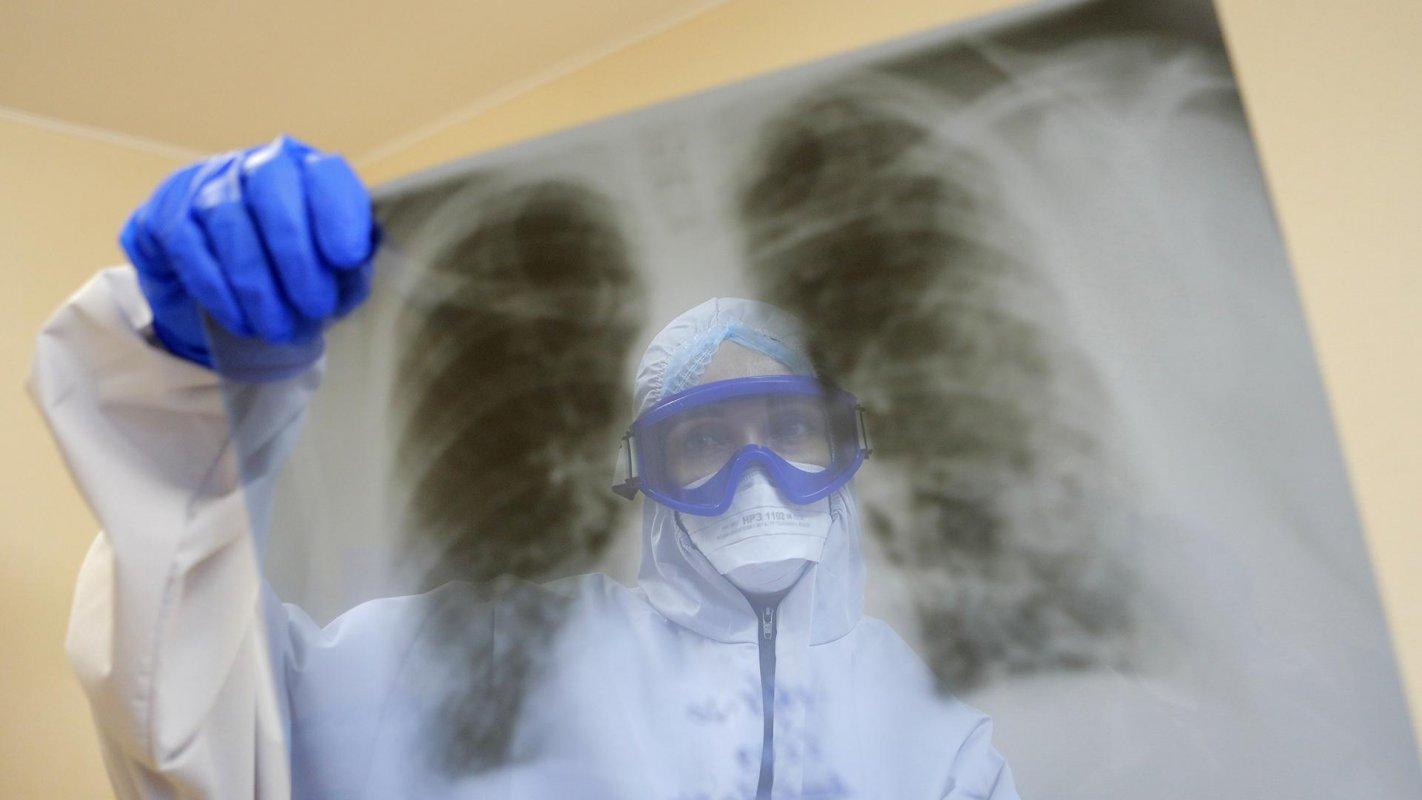 В  реанимации инфекционных больниц Костромской области  находится  61 больной с COVID-19